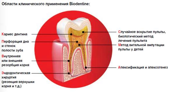 biodentine-septodont.jpg